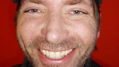 Mathias Gårdinger